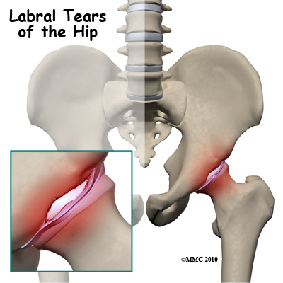 Labral Tear Of The Hip Acetabular Labrum Tear Therapy